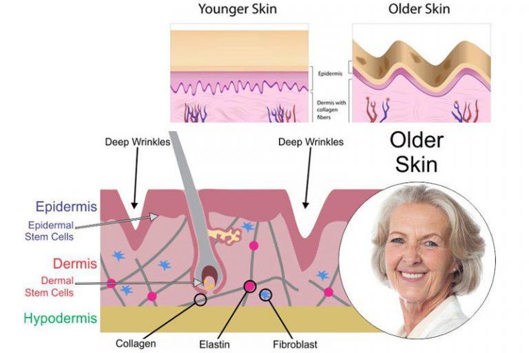 skin3